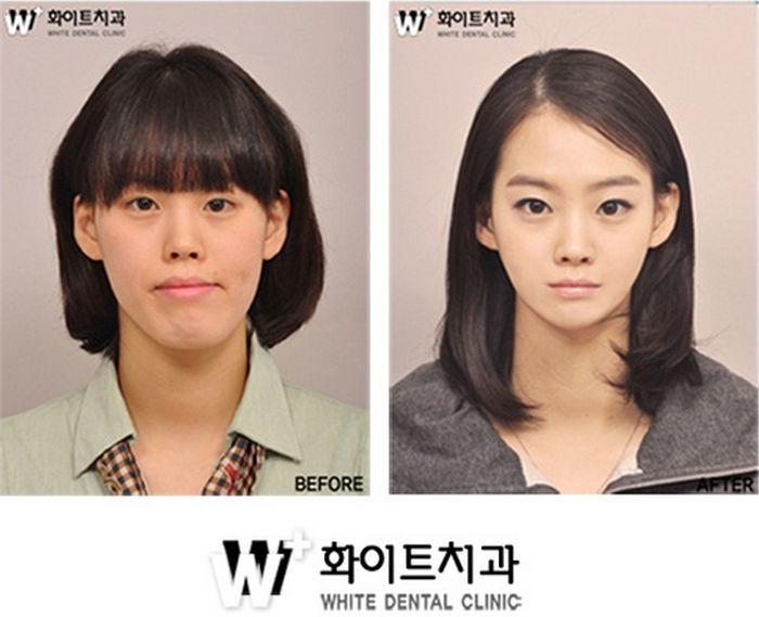 韓国人 整形ビフォーアフター