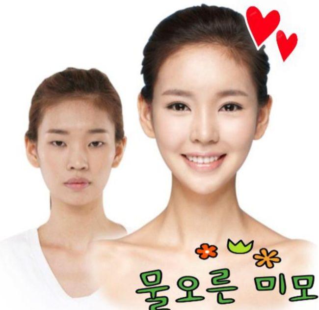 韓国 整形