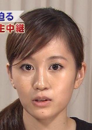 前田敦子の顔が違う 整形