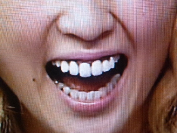 E-girls Amiの歯 治療後