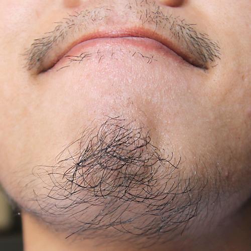 育毛剤 髭