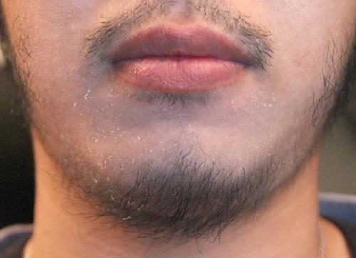 髭 育毛剤 ヒゲにも頭髪用育毛剤は使える?髭を濃くしたい人が絶対に選んではいけないのは?