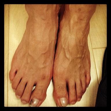 リフレ左足のみ