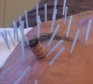 顔鍼 顔灸