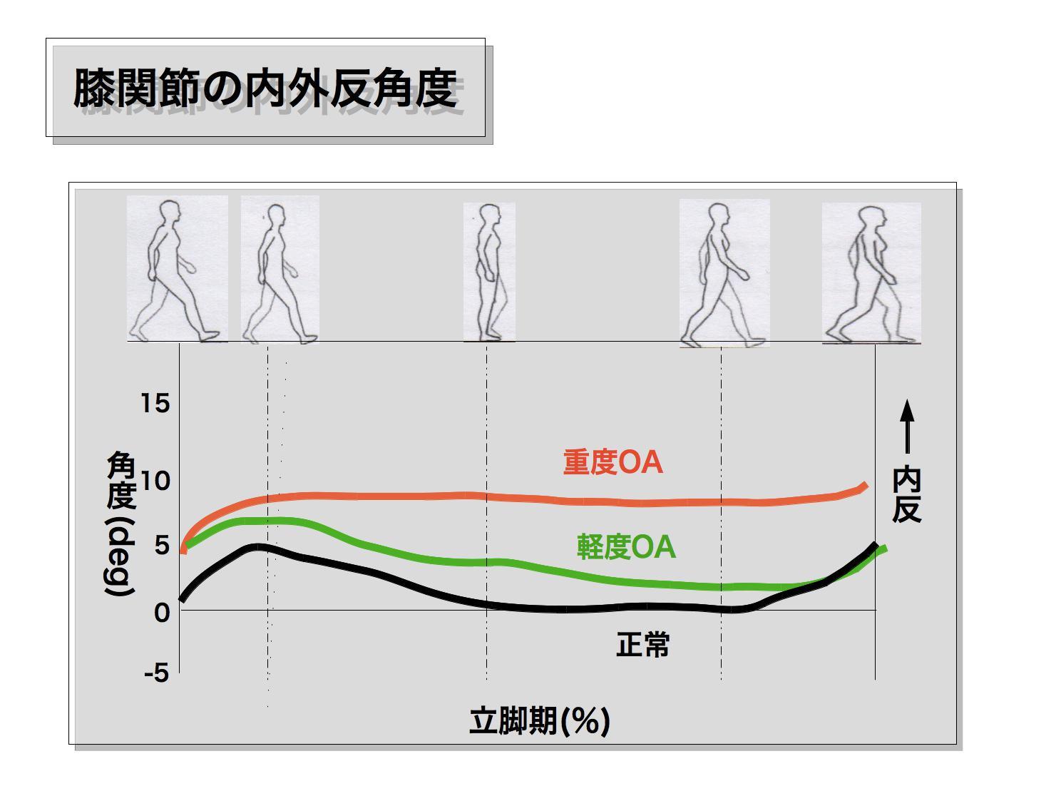 変形性膝関節症の歩行