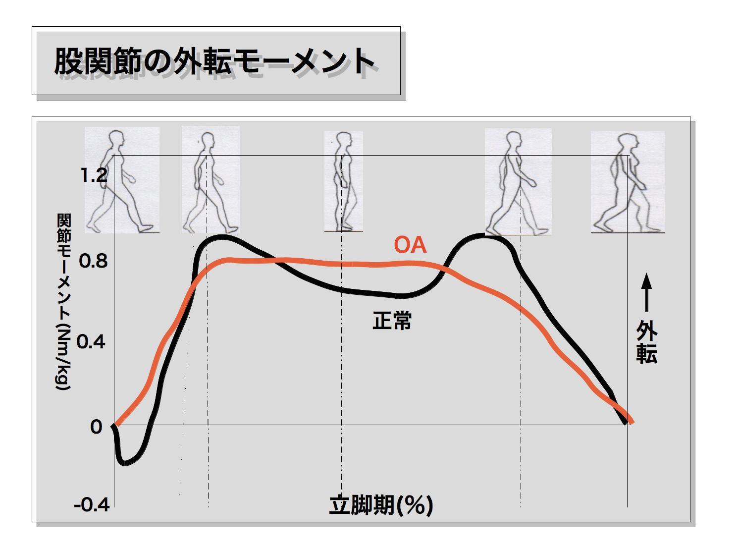 変形性膝関節症の歩行2