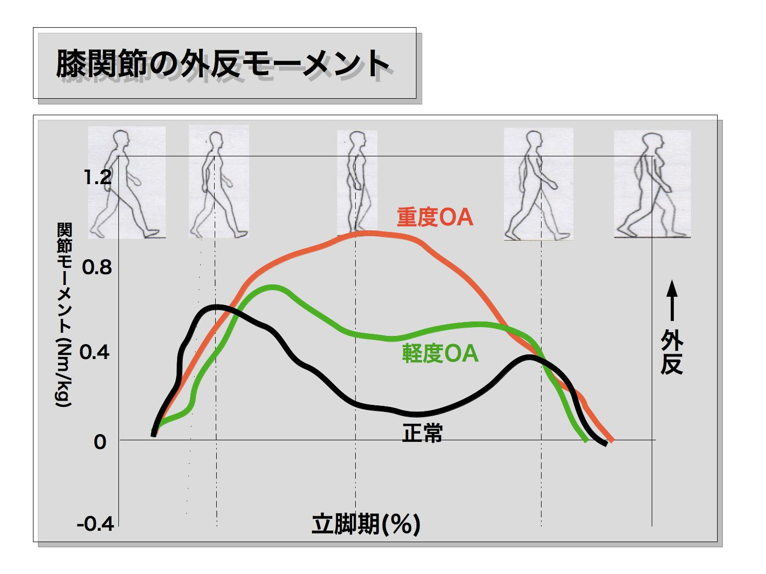 変形性膝関節症の歩行3