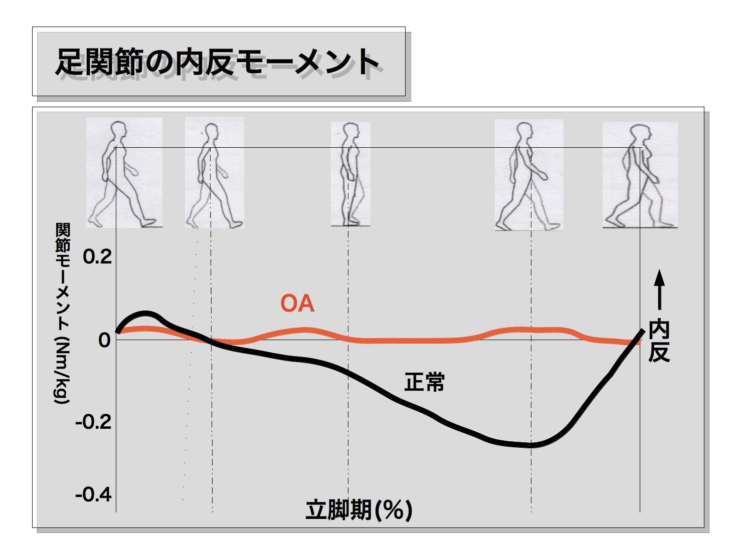 変形性膝関節症の歩行5