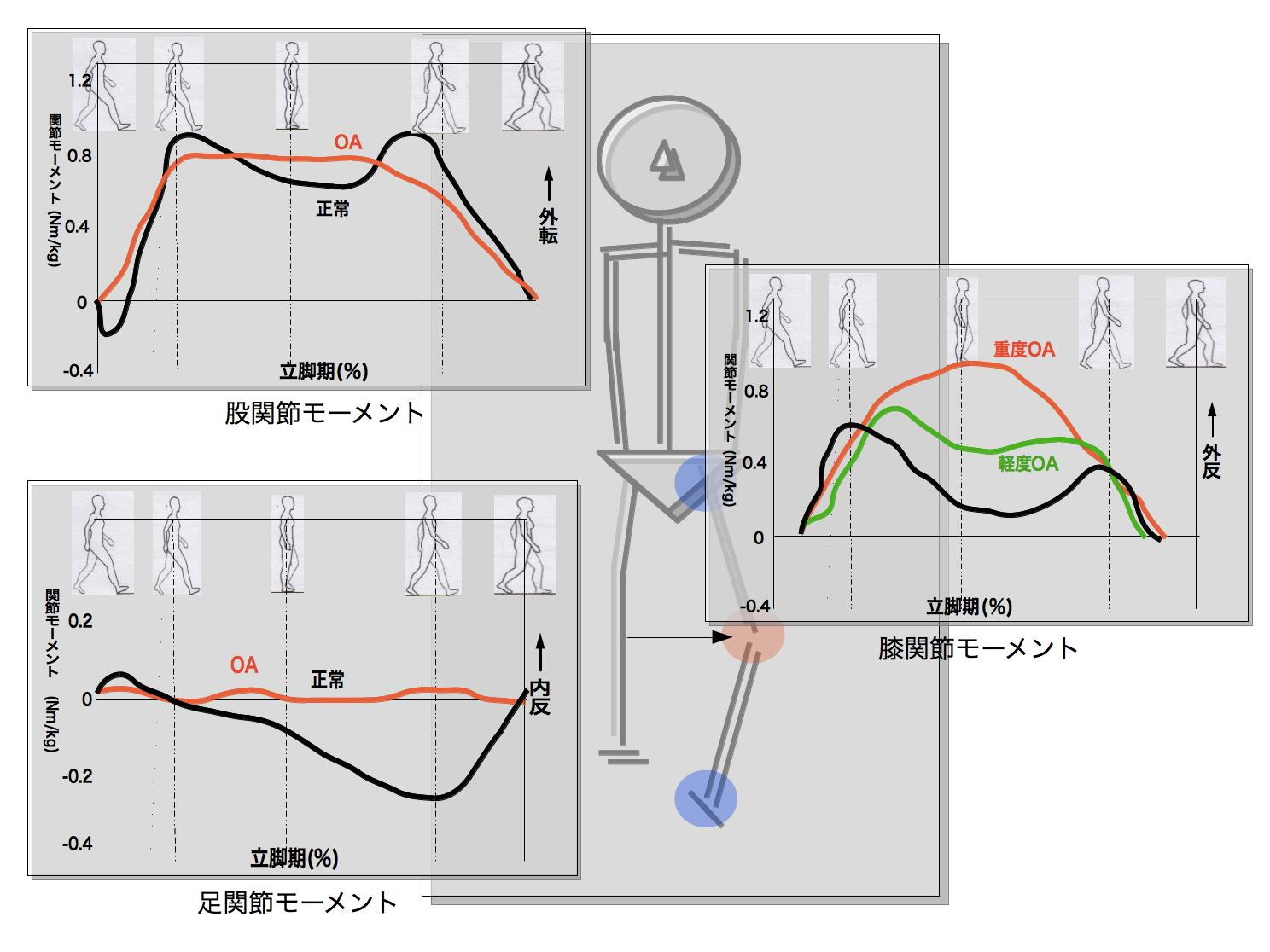 変形性膝関節症の歩行6