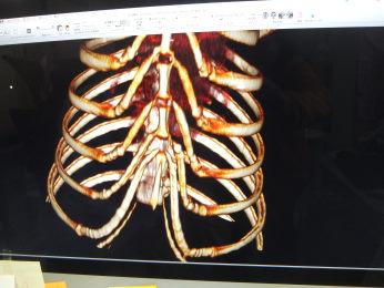CTの写真です