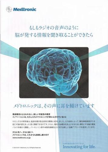 メドトロニック 脳波を聞き取る技術