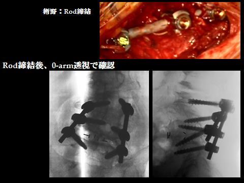 32腰椎症性側彎症+椎間孔狭窄の固定術