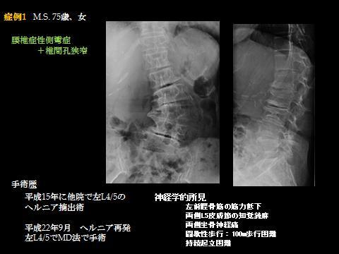 腰椎症性側彎症+椎間孔狭窄の固定術 1